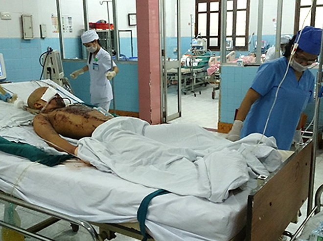 Three days after the accident, Hoan is still in a coma and under special monitoring at Quang Tri Hospital's Emergency Room where he's on a mechanical ventilator. Photo: Hoang Tao, VnExpress.
