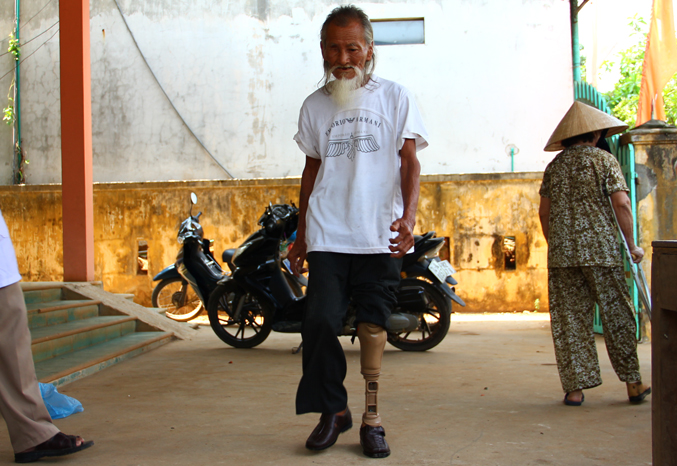 Pham Quang Hai learns to walk with his new prosthesis. [Photo: Dang Quang Toan/Project RENEW]